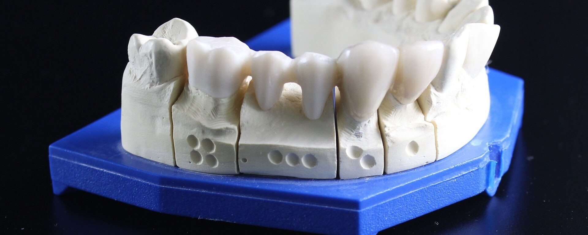 Fixed partial dentures (FPD) MCQs